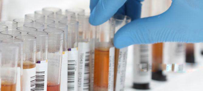 BarTender软件在医用标签方面的应用