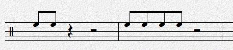 Overture如何更改音符符尾設置