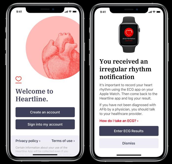 Apple Watch Series 4房颤检测