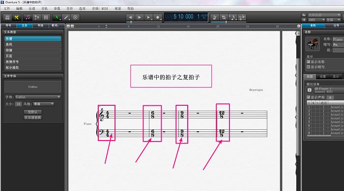 乐谱软件Overture上的复拍子