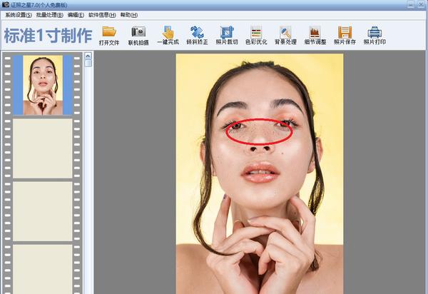 图1:脸部斑点图